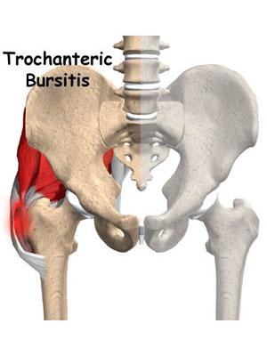 Smerter i hoften og ned i benet