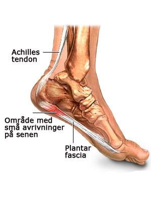 vondt under hælen